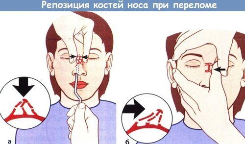 Репозиция костей носа стоимость